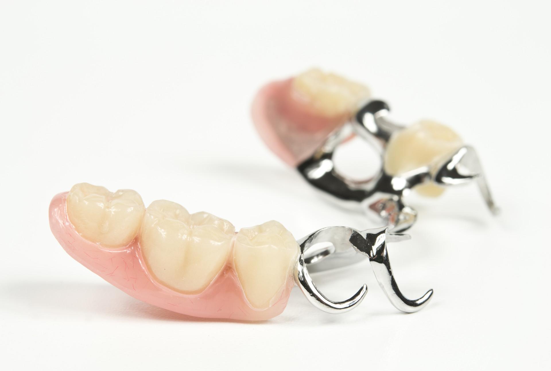 Зубные протезы на крючках: плюсы и минусы кламмеров 23